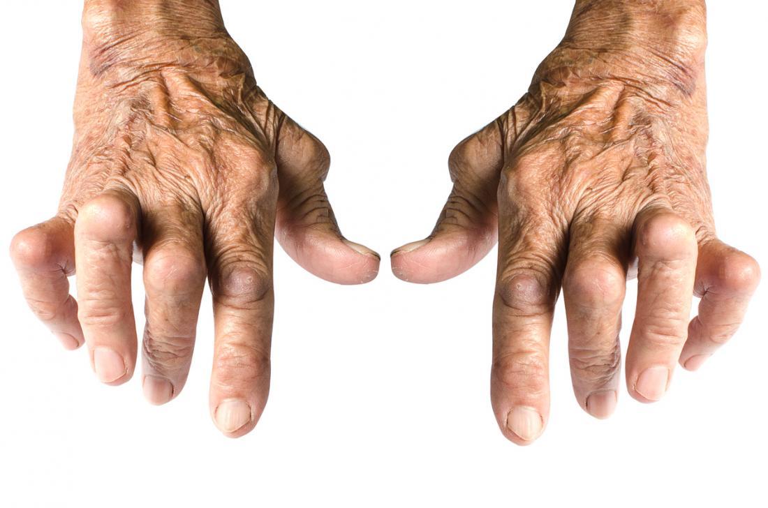 Mãos afetadas pela artrite reumatóide.