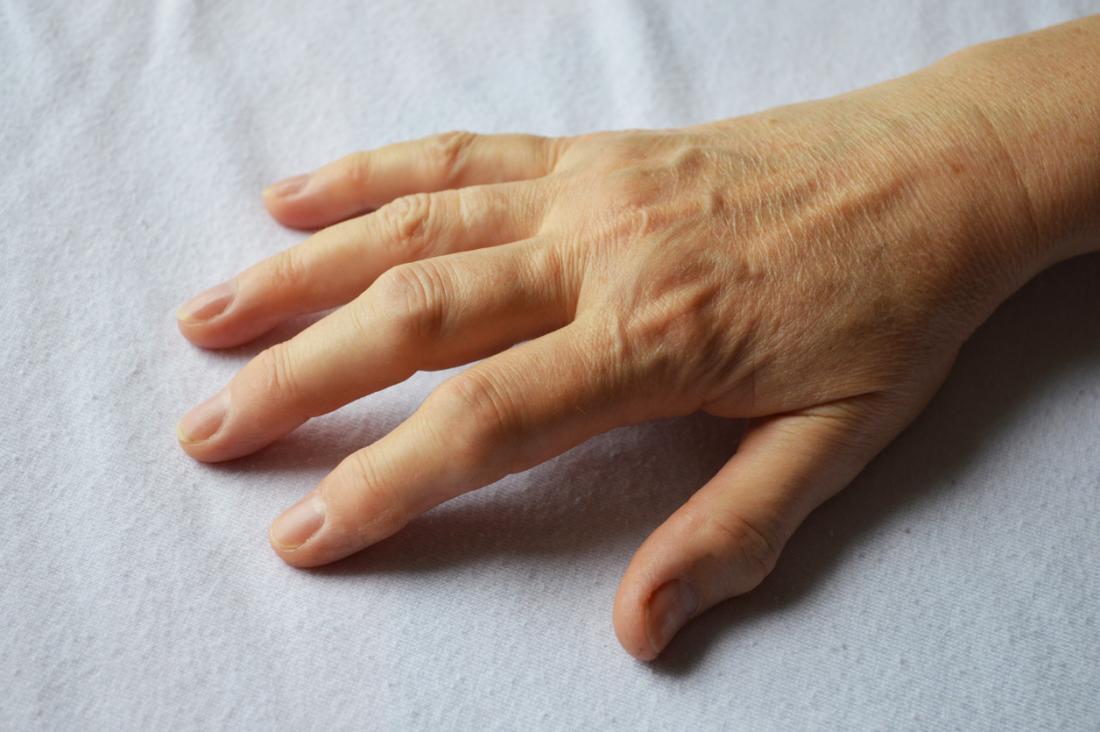 Mão do jovem, mostrando sinais de artrite.