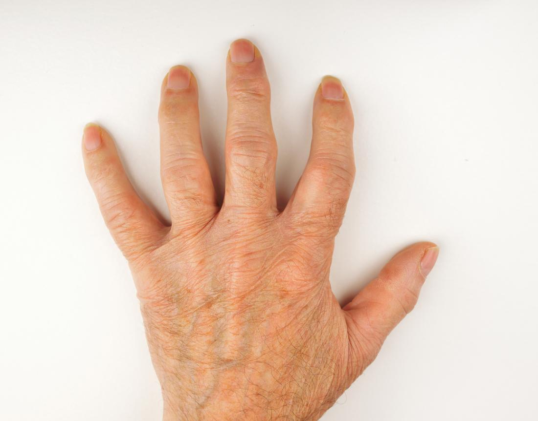 Ръката се разстила, показвайки подуване на артрита.