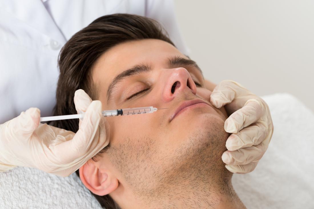 Homem recebendo injeção de botox acima do lábio superior.