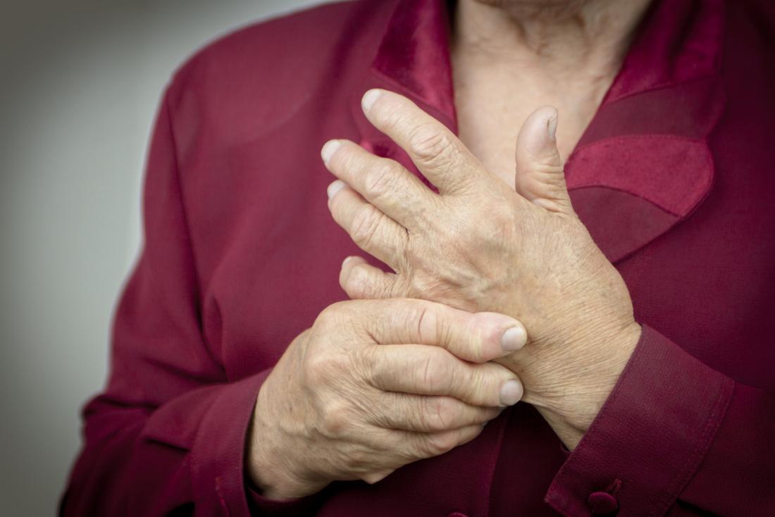 Viêm khớp dạng thấp ở bàn tay và ngón tay của người phụ nữ.