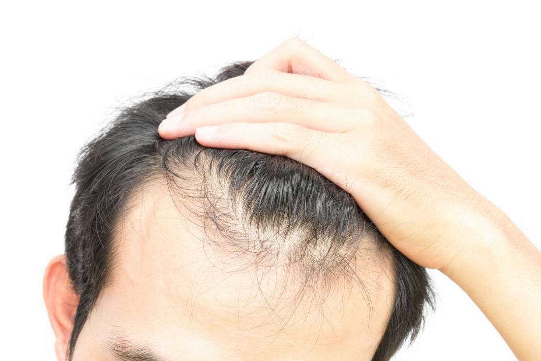 Haarausfall, Haarausfall und Ausdünnung bei einem jungen Mann.