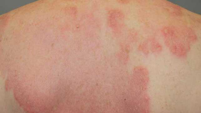 Interstitielle granulomatöse Dermatitis