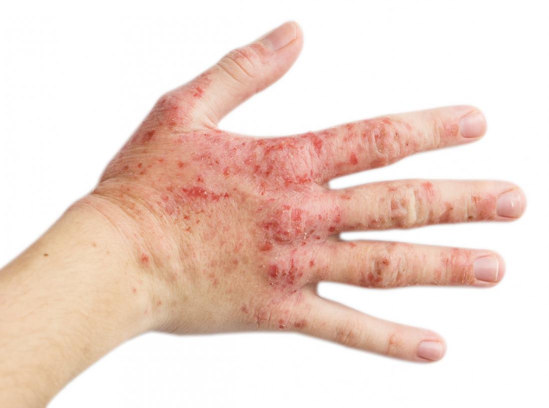 eczema na mão