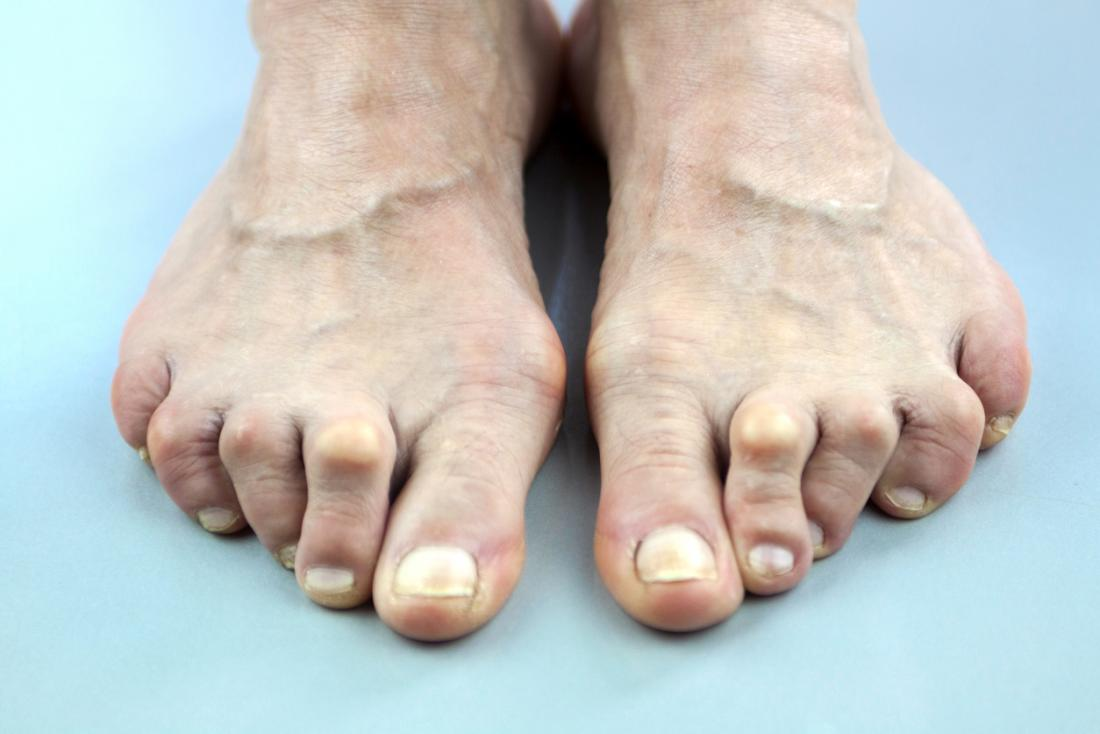 Arthritis in Füßen und Zehen.