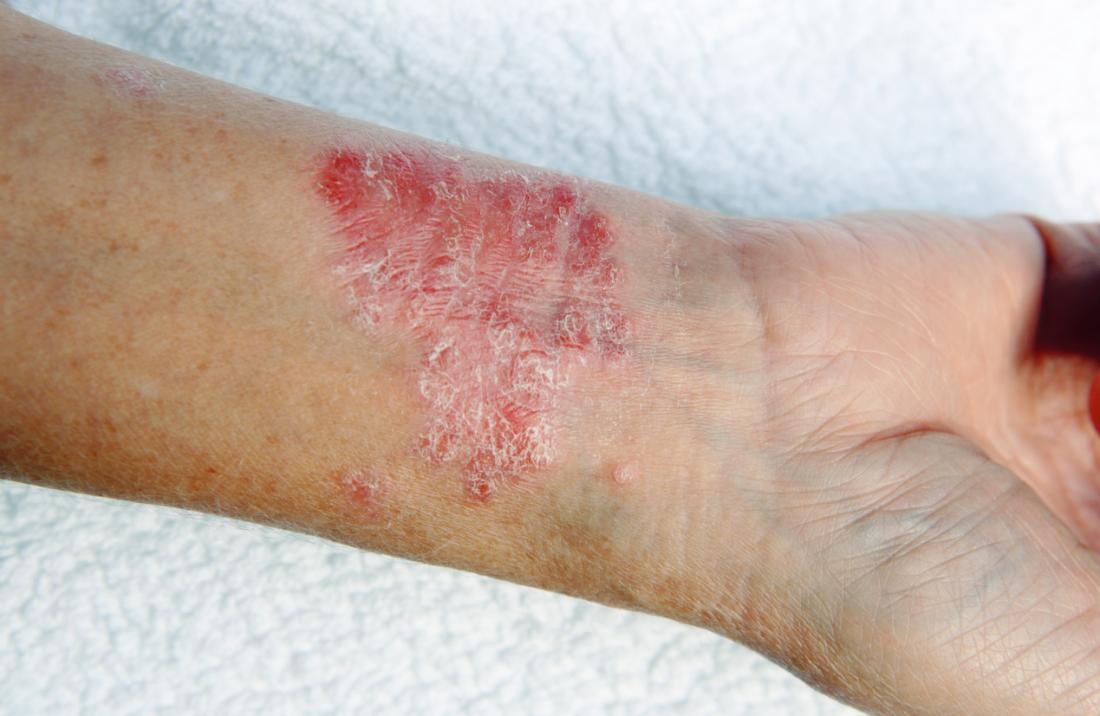 Le psoriasis à l'intérieur du poignet d'une personne.