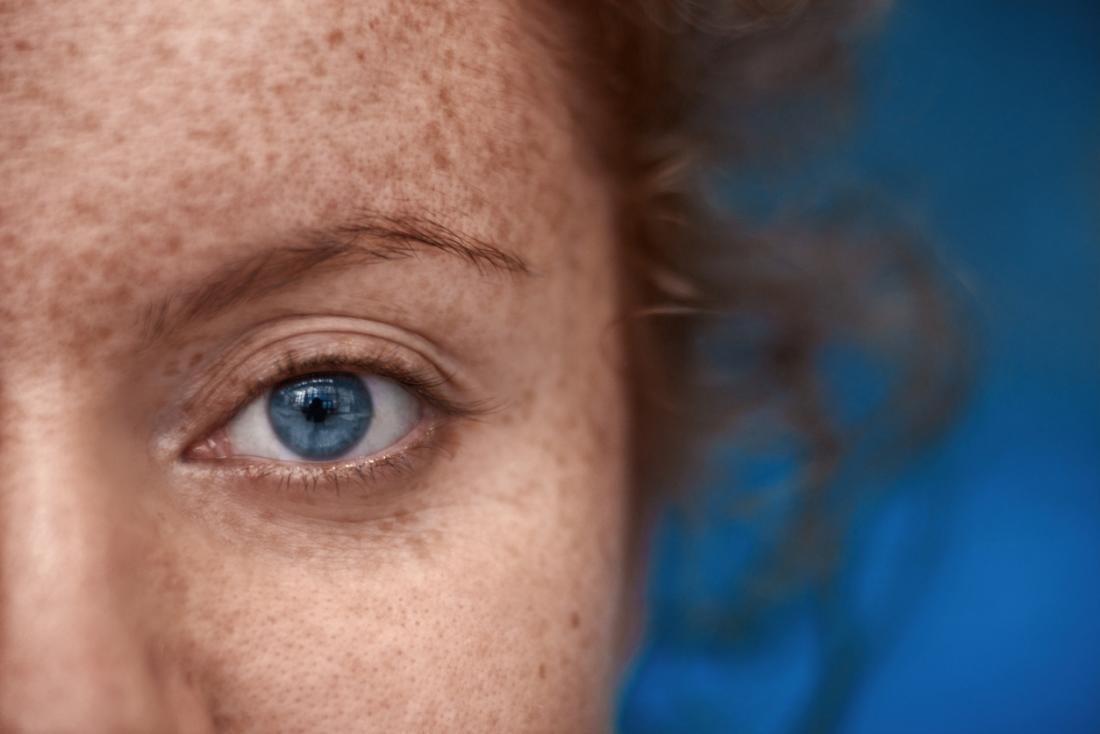 Fille avec des taches de rousseur et des yeux bleus