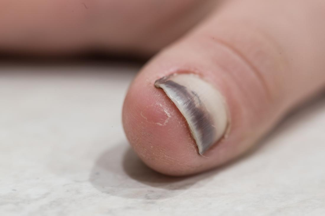 Miniatura machucada