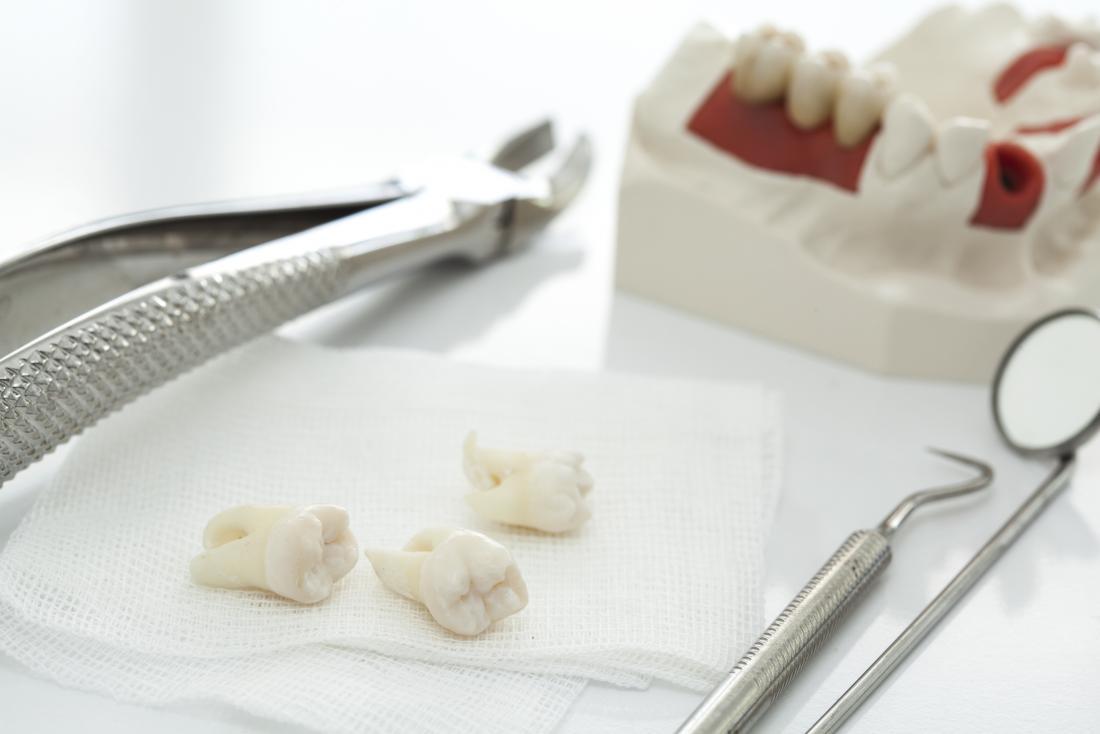 Dentes do siso removidos na toalha branca com ferramentas e modelo da maxila.