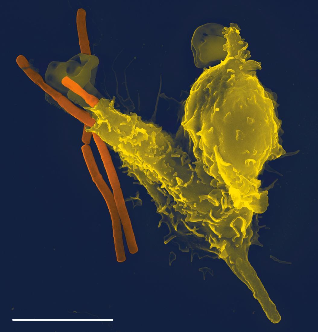 neutrófilos (amarelo), bactérias do antraz que se engolfam (laranja) Crédito da imagem Volker Brinkmann
