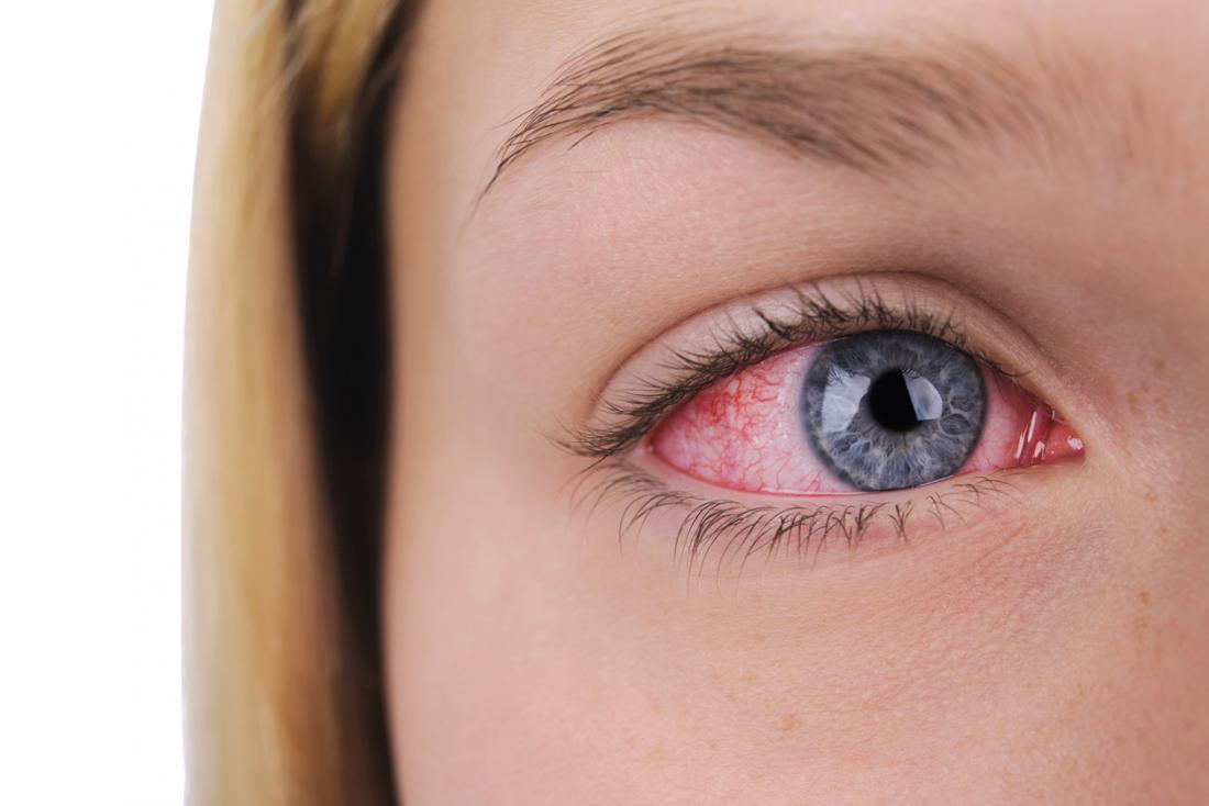 donna con occhio iniettato di sangue