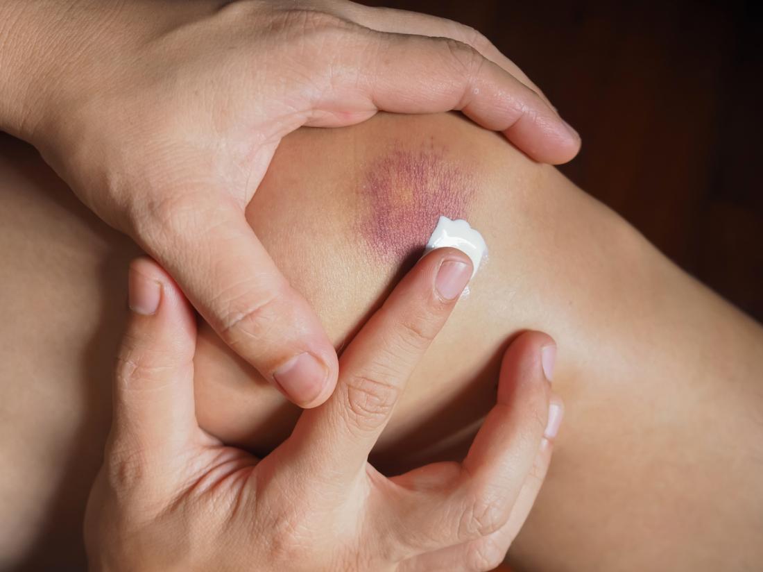 Người áp dụng kem hoặc thuốc mỡ cho da thâm tím.