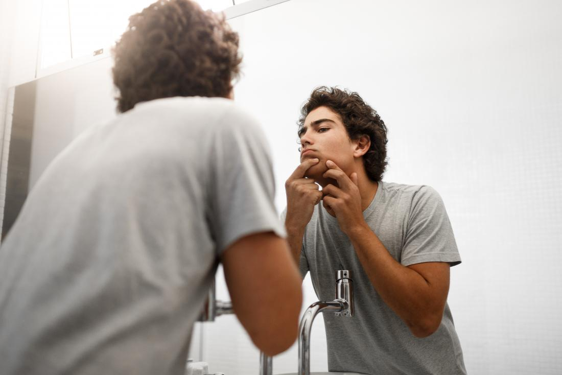 Junger Mann vor dem Spiegel, der Stelle auf dem Kinn quetscht, das einen Blutpickel verursacht.