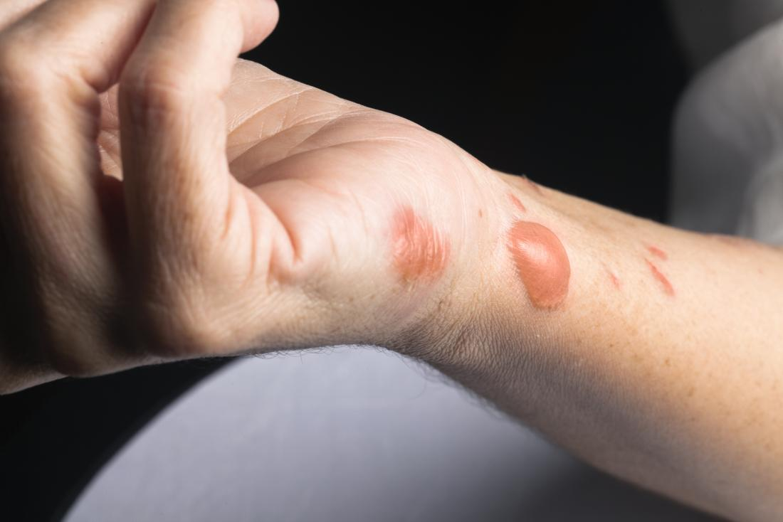 Изгаряйте белези на китката и ръката на човека, с мехури и белези.