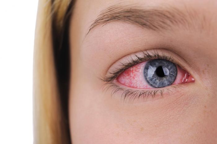 Um olho direito de senhoras que está injetado