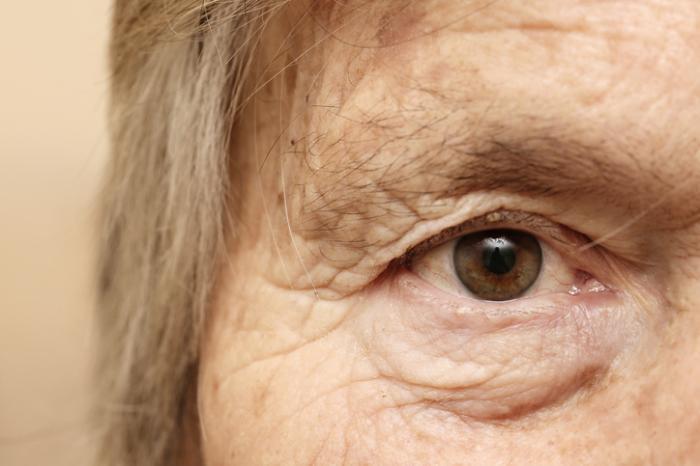 [gros plan de l'œil d'une femme âgée]