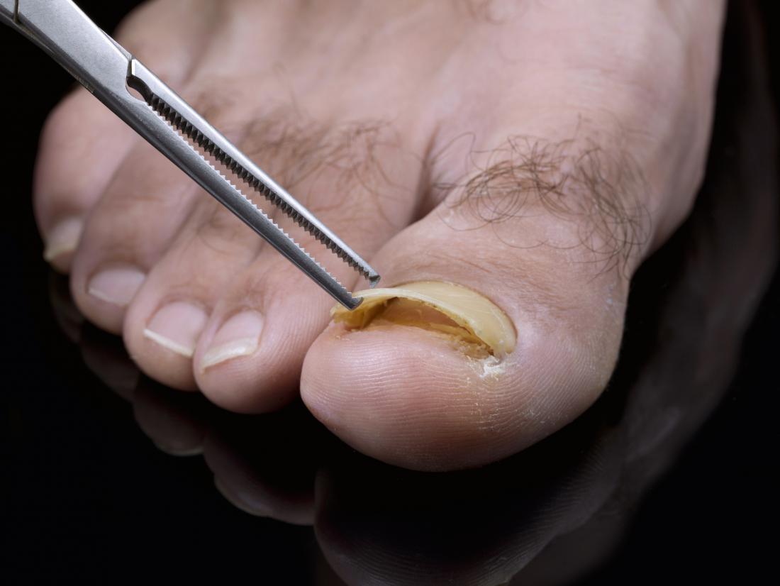 отделен нокът на нокът