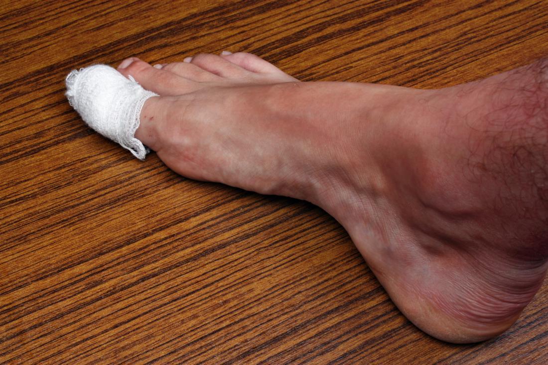 descalço com o dedão do pé enfaixado