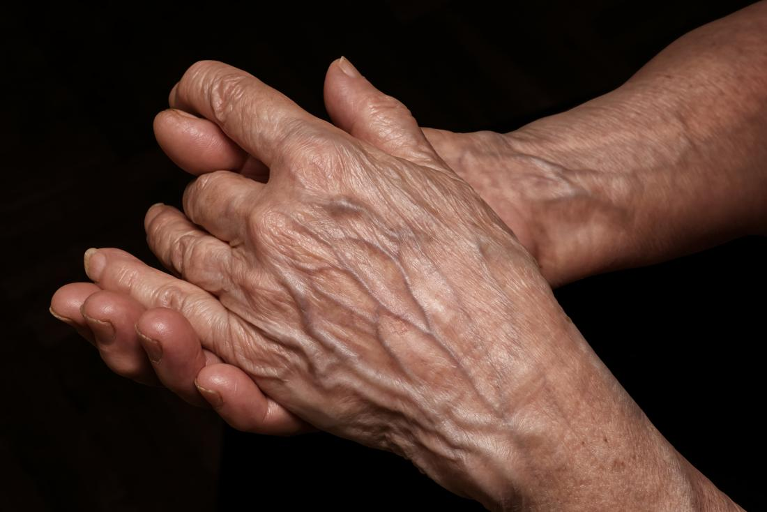 手に薄い肌のシニア人