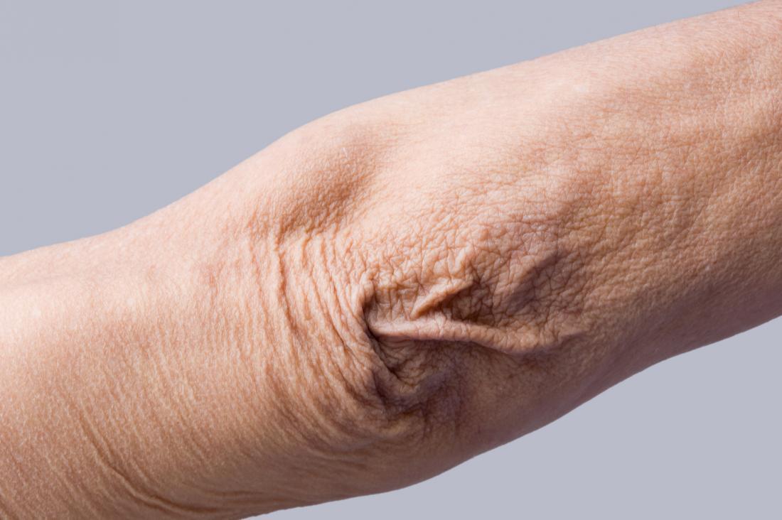 Skóra Crepey powodująca cienką i pomarszczoną skórę na łokciu.