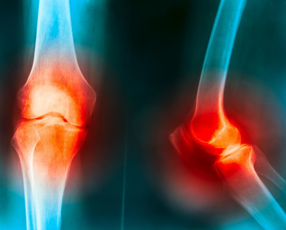 Raio X para articulação do joelho