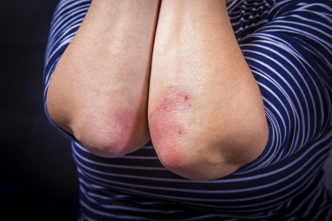 Le psoriasis se propage d'un coude à l'autre coude sur la même personne.