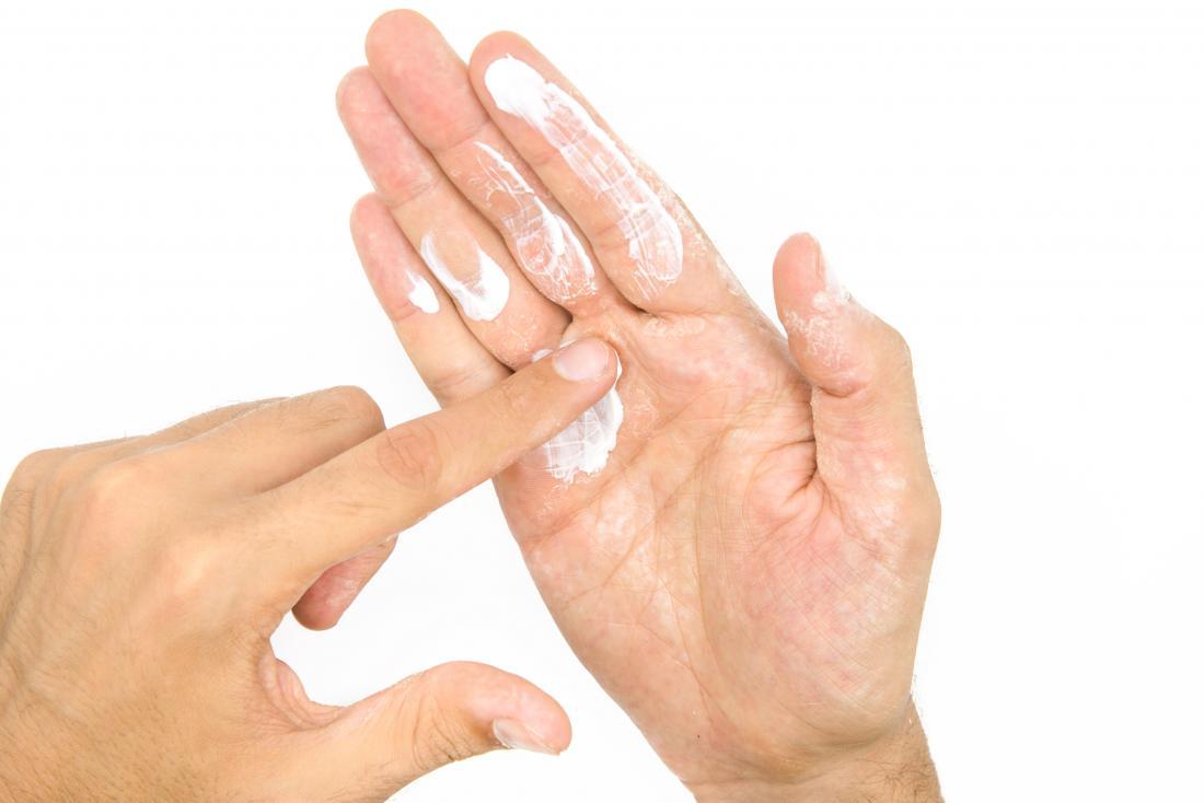 Person, die Feuchtigkeitslotion auf trockene Haut auf Händen setzt.