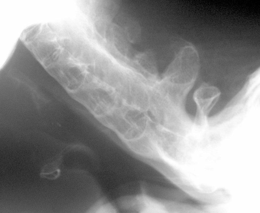 ankylosis br hình ảnh trường hợp tín dụng lịch sự của một prof frank gaillard a href https radiopaedia org radiopaedia org một từ các trường hợp a href https radiopaedia org trường hợp 2912 thoát 2912 một br