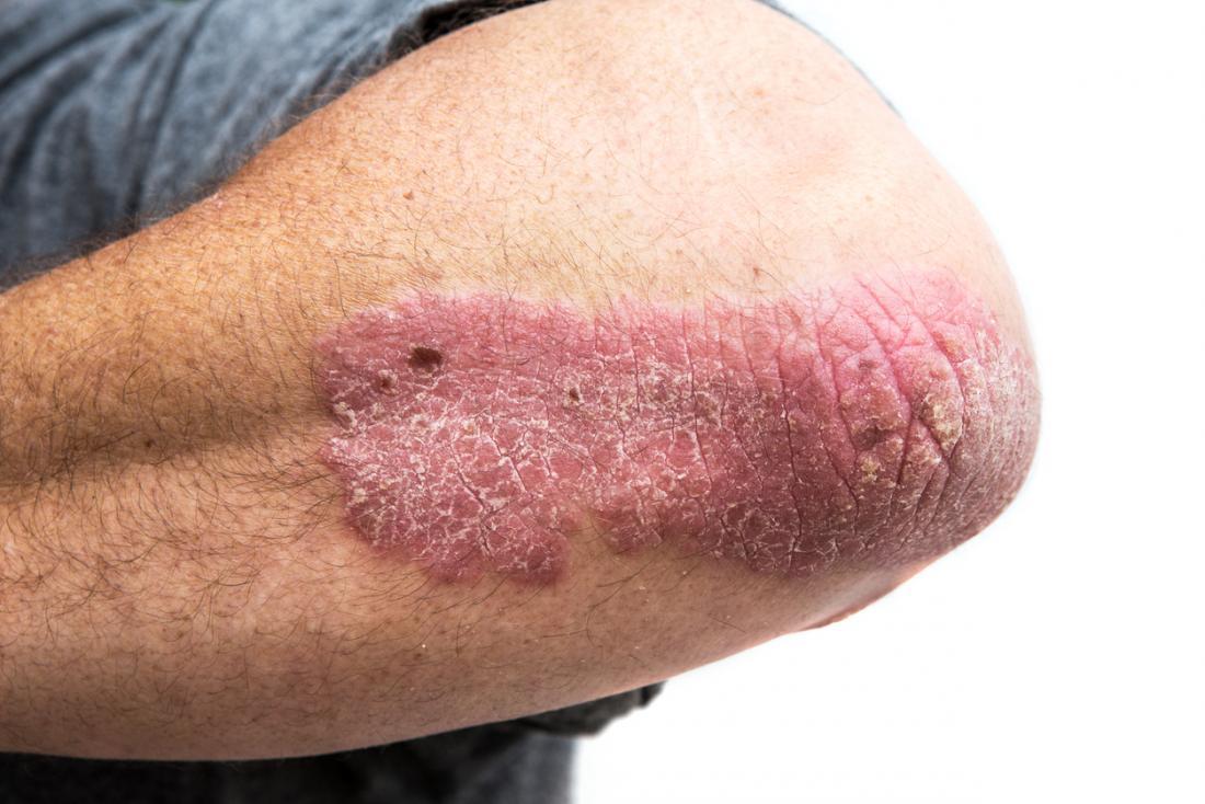 bệnh vẩy nến trên khuỷu tay