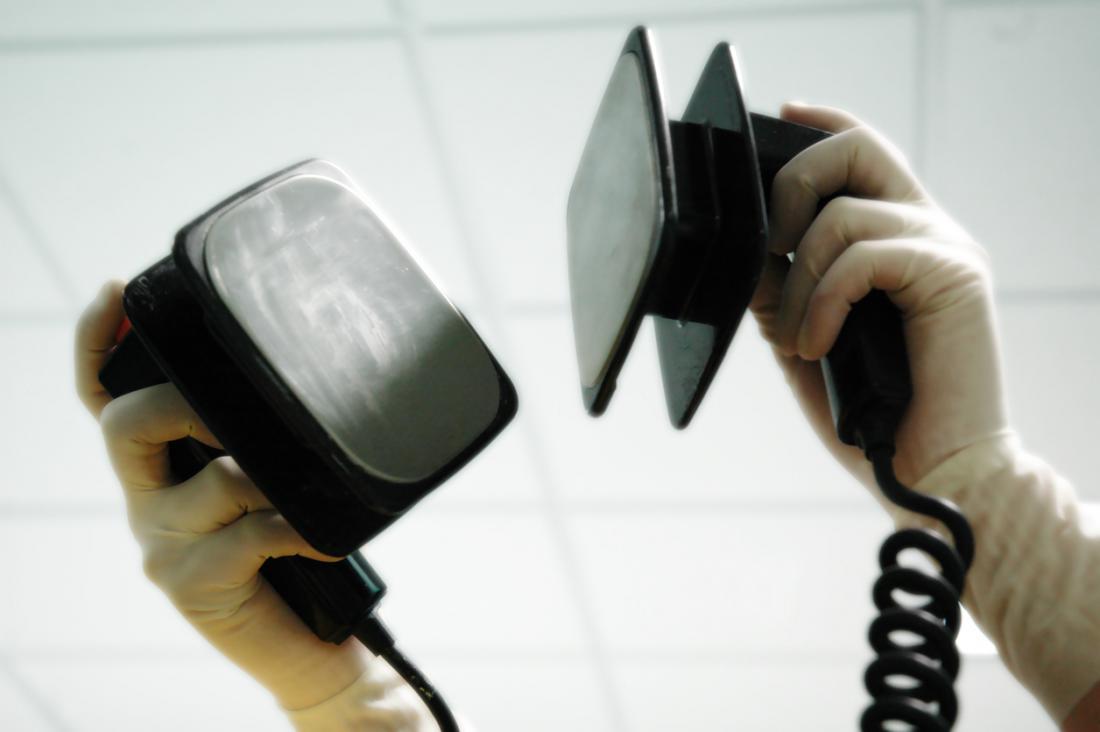 Uno dei principali trattamenti durante un attacco di cuore è l'uso di pannelli di defibrillatore.