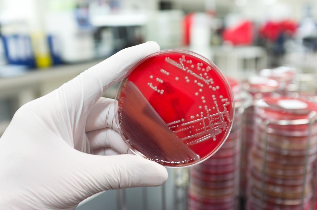 研究室のペトリ皿の寒天ゼリーの細菌。