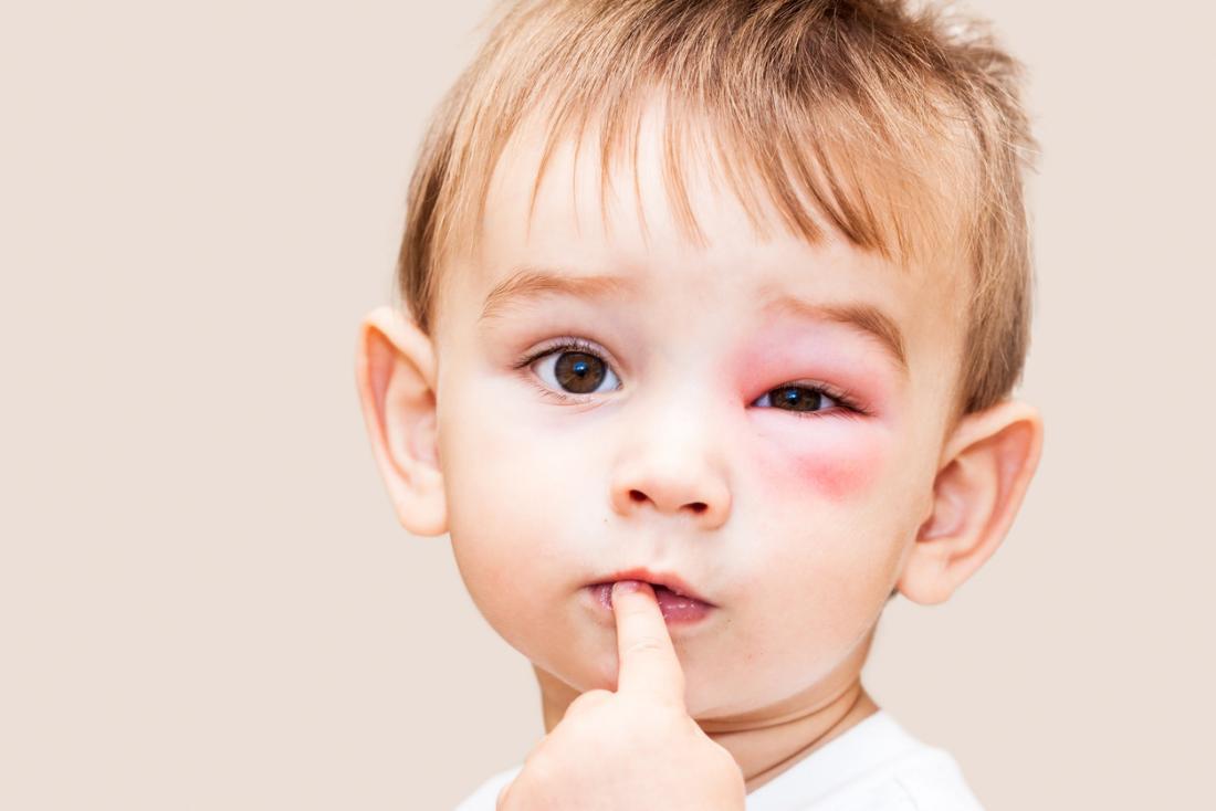 criança tem uma picada de inseto perto do olho