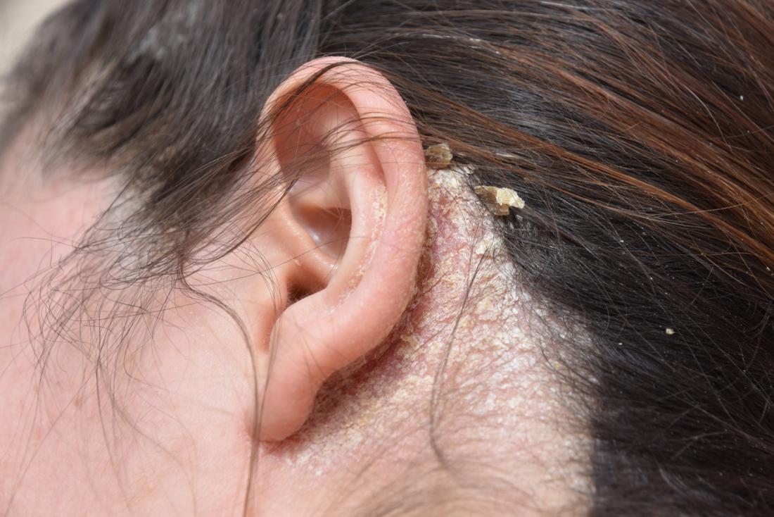 Các trường hợp nặng hơn có thể biểu thị tình trạng da và cần được bác sĩ khám.