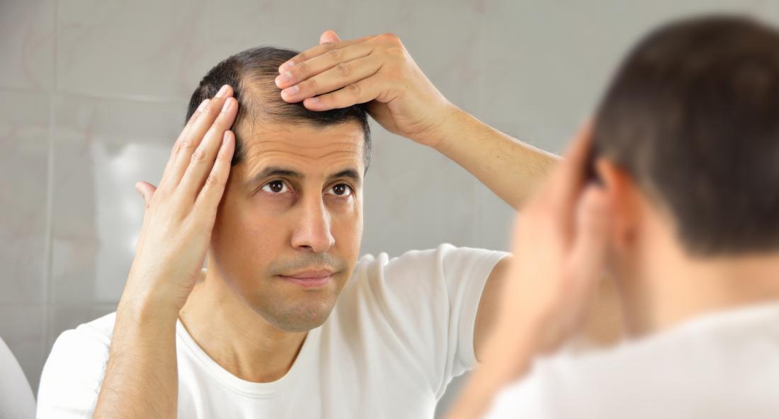 鏡の中で髪の毛の薄化と喪失を見ている男。