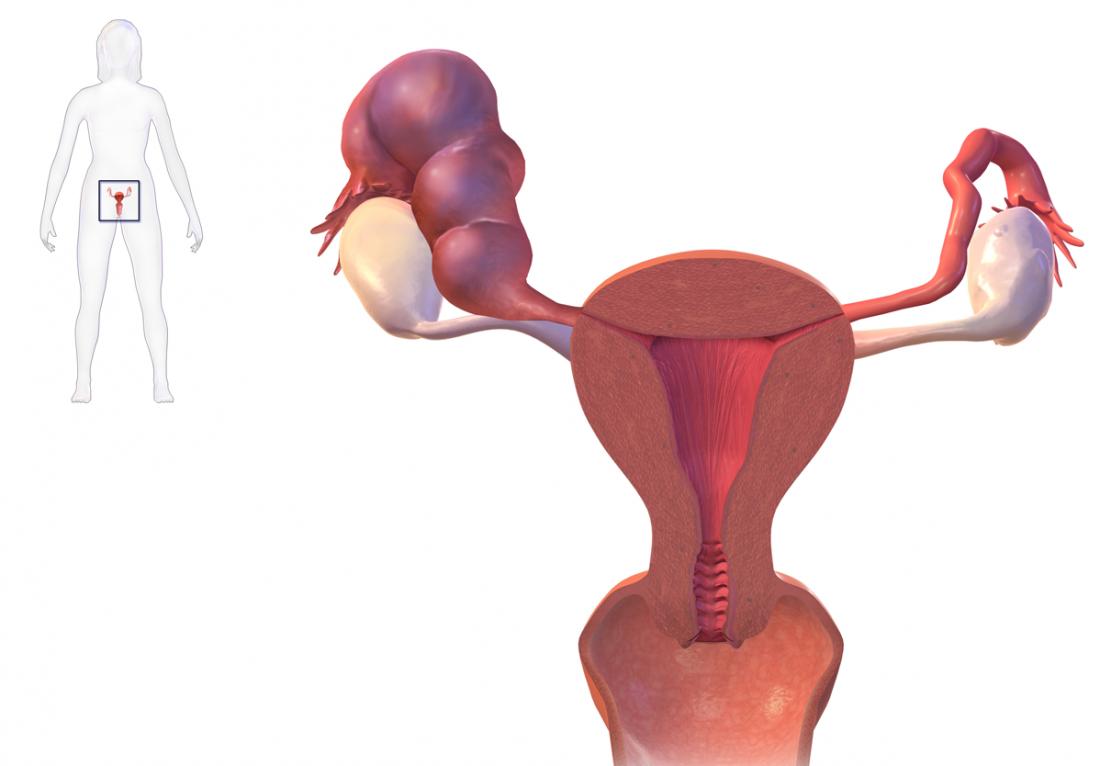 Tử cung với hydrosalpinx gây ra ống dẫn trứng bị viêm. Tín dụng hình ảnh: BruceBlaus, (2016, ngày 25 tháng 1)