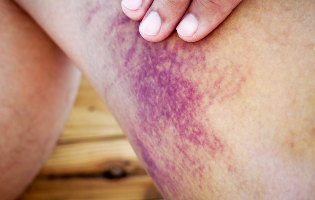 Ecchymose à la jambe causée par une hémorragie ou une hémorragie interne.