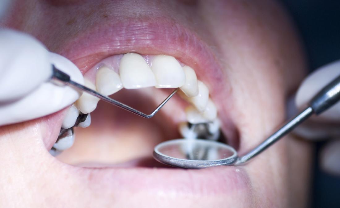 зъболекар инспектира устата