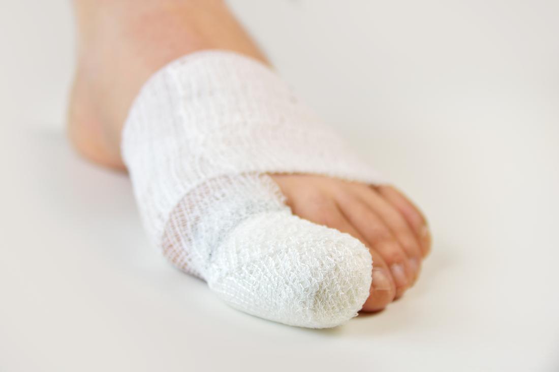 Kırık büyük ayak bandaj sarılı.