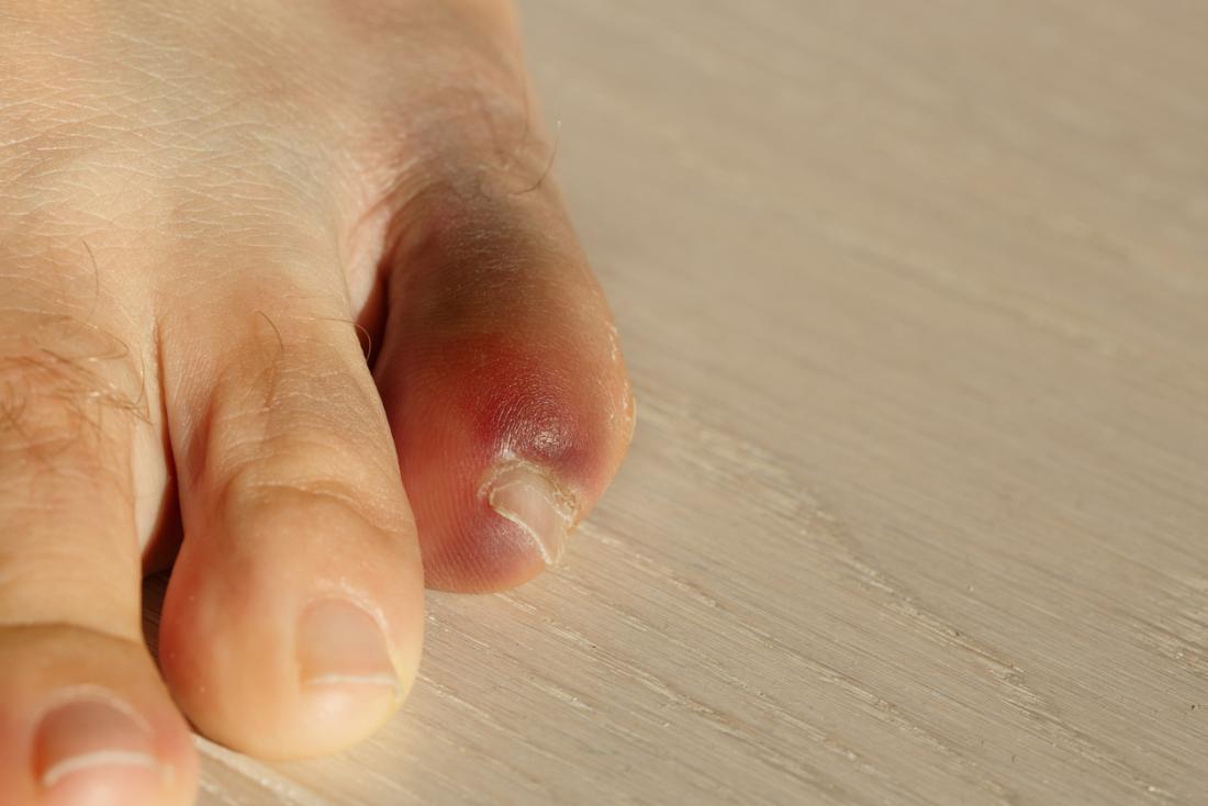 Çürük, şişmiş ve kırık küçük ayak parmağı.