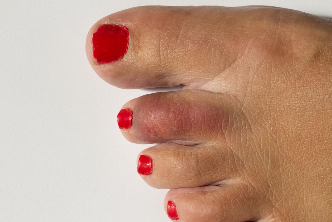 Kırmızı ve çürük olan kırık ayakları olan boyalı ayak tırnakları.