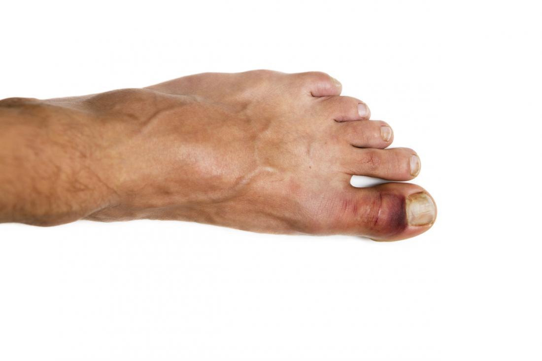 Siyah ve mor çürüme ile kırık ayak parmağı.