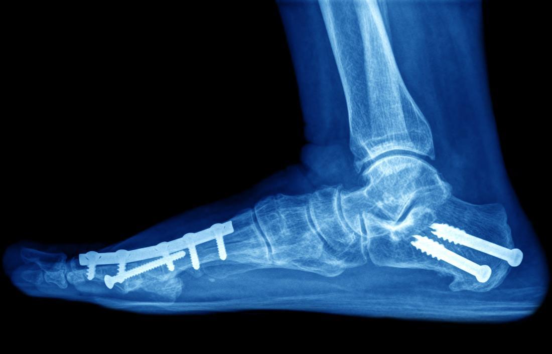 Kemikleri yerinde tutan iğneler ve vidalar ile kırık ve ayak ve ayak parmaklarının röntgeni.
