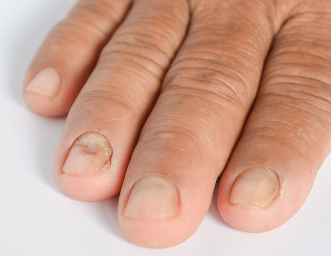Infection fongique dans les ongles.