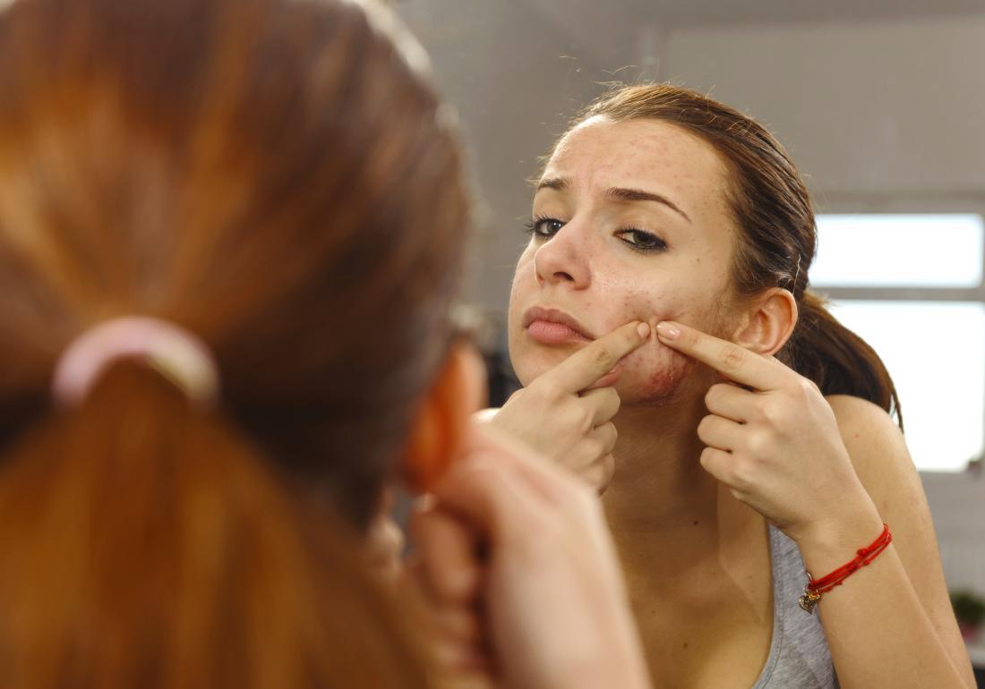 Frau, die infizierten Pickel auf Gesicht im Spiegel betrachtet und Aknepickel auf Backe zusammendrückt.