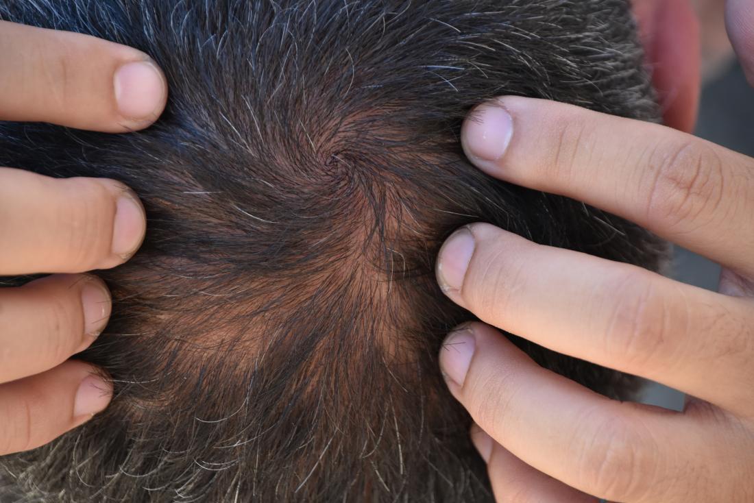 Médecin examinant le cuir chevelu pour effluvium télogène