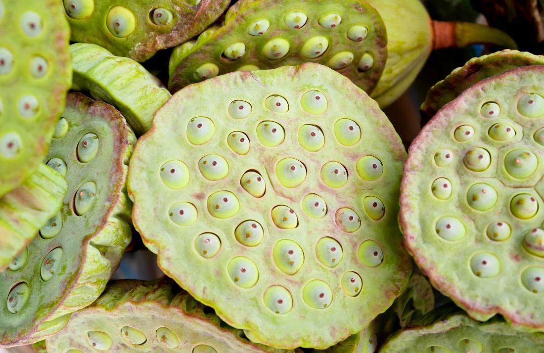 Lotus Samen Köpfe, die Trypophobie verursachen können