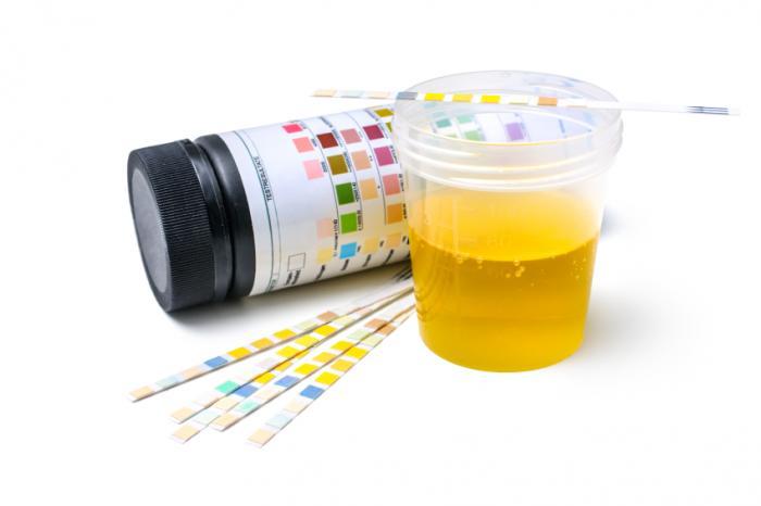 Échantillon d'urine et bandelettes de test.