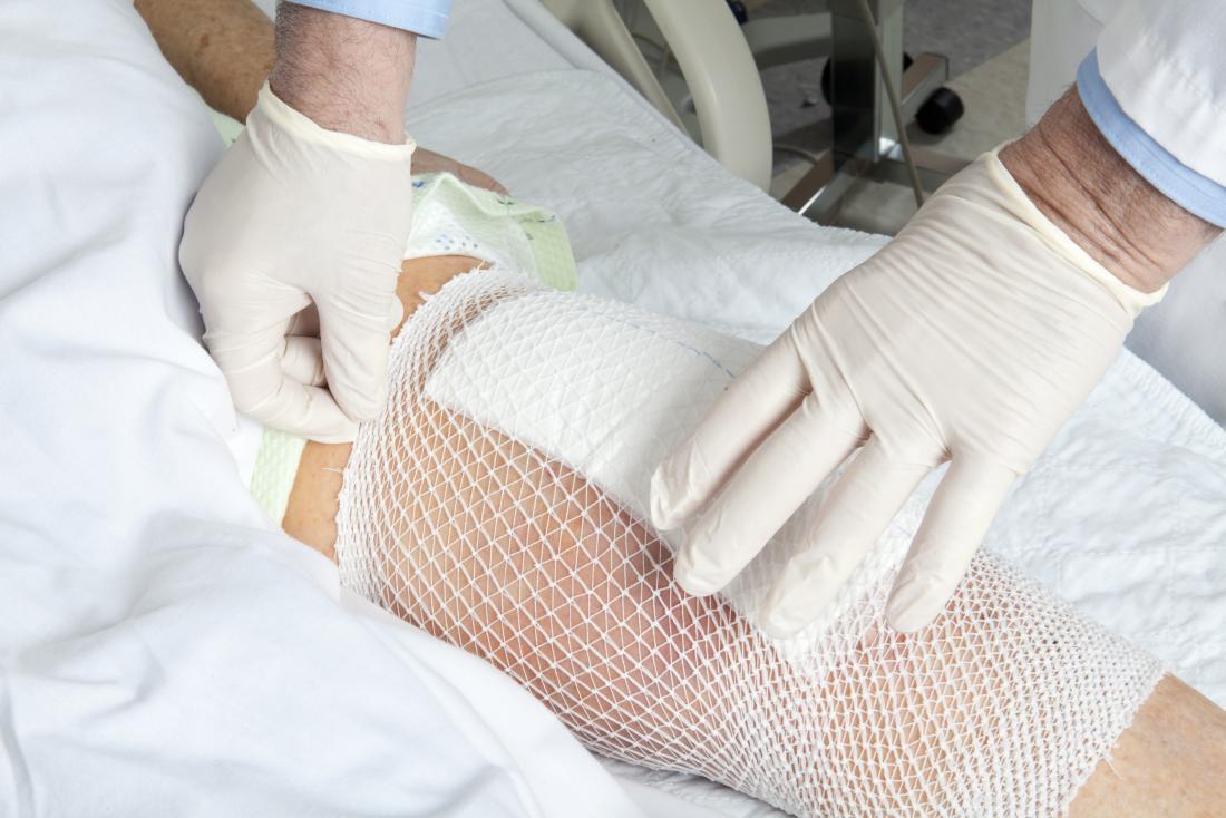 Knieersatzbandage Knieersatzinfektion