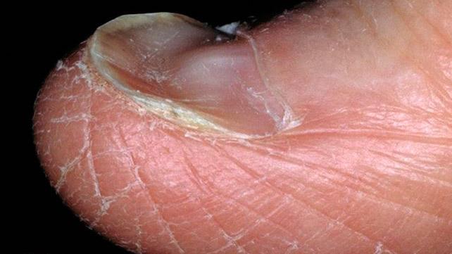 食事中の鉄の欠乏は、狼瘡を引き起こす可能性があります。