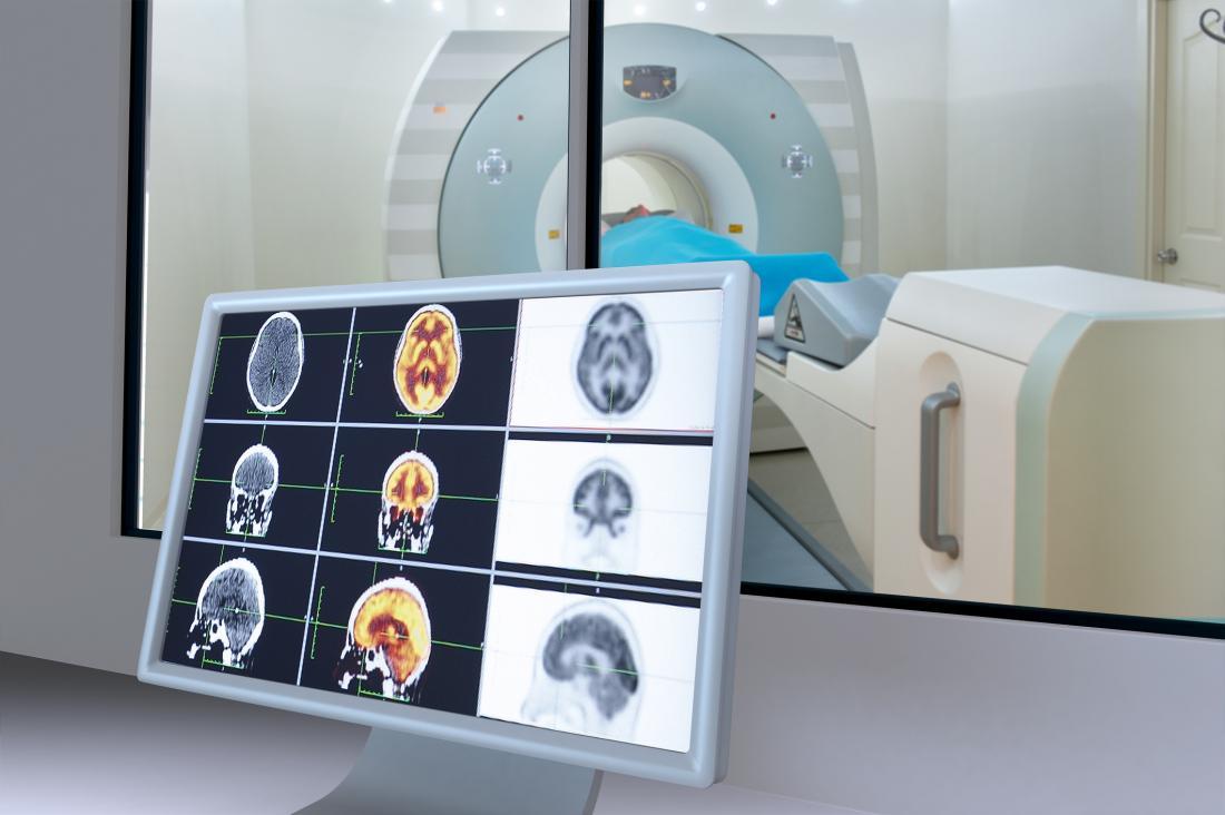 Мозъчните полукълба се анализират на екрана, докато човек е в машина за ЯМР.